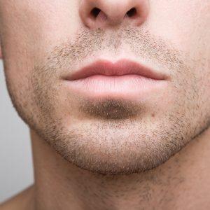 Lipoescultura o Liposucción Facial Masculina