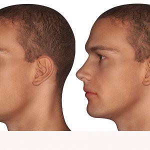 Mentoplastía / Aumento de Mentón para Hombres